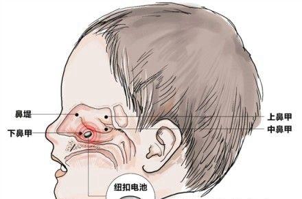 儿童鼻腔结构图
