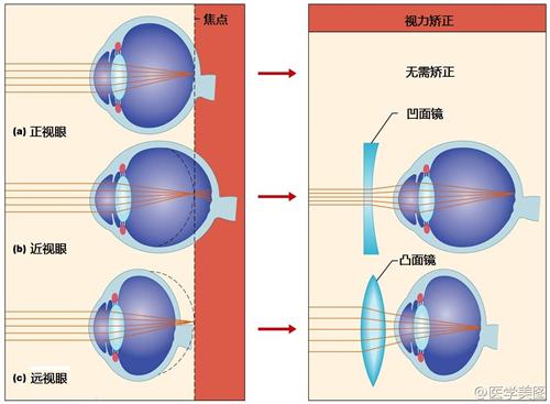 框架眼镜的镜片,可以将入射光线的焦点前置