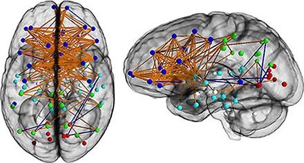 """大脑""""电路"""",男女差异明显 - 如是 - 如是博客"""