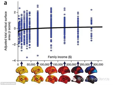 家庭收入影响儿童大脑发育