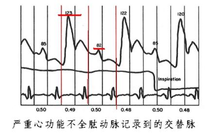 脉搏示波器的电路图
